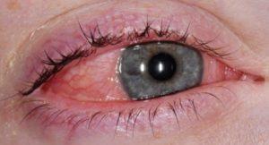 Conj Alergica